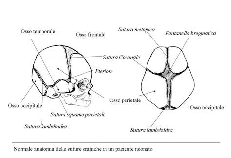 cranosteniosi2